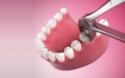 Sunt necesare extractiile dentare pentru tratamentul ortodontic?